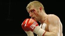 Câu chuyện về vết khâu ẩu tiêu tốn 1 tỉ đồng của Boxer Tony Jeffries