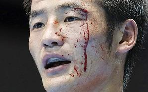 Võ sĩ quyền Anh Olympic xử lý những vết cắt như thế nào?