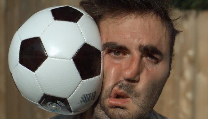 Video hài hước: Thốn đến tận rốn với pha bóng đập vào mặt tại Bundesliga
